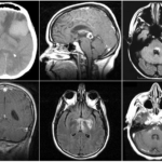 Parenchymal Lymphoma and the Central Nervous System (CNS)